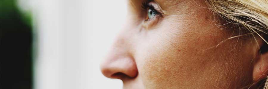 Neuscorrectie zonder fillers