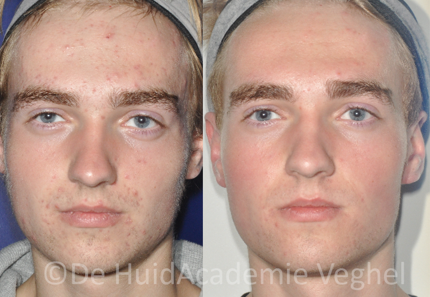 Zein Obagi acne