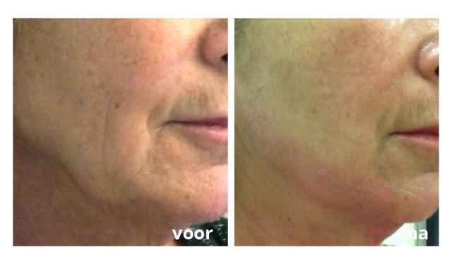 Plexr huidveroudering effect