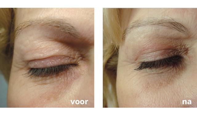 PlexR ooglidcorrectie zonder snijden